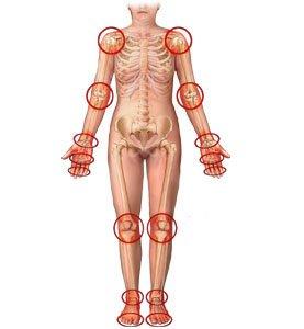 Лечение гипермобильности суставов в Израиле