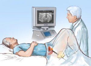 Биопсия предстательной железы в Израиле