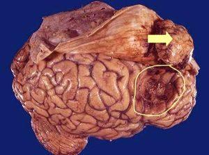 Лечение метастазов головного мозга в Израиле